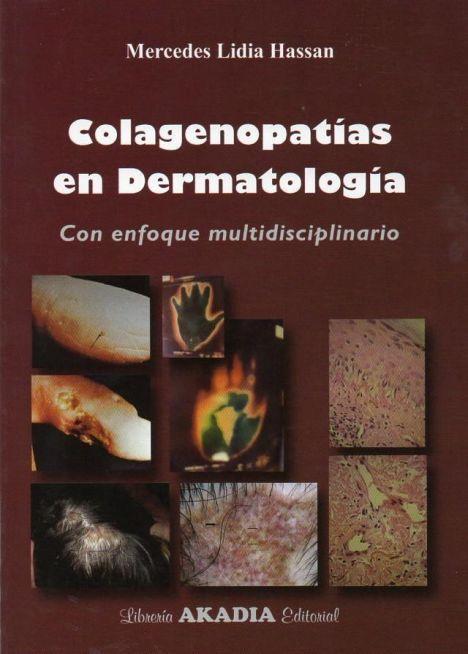 COLAGENOPATIAS EN DERMATOLOGIA