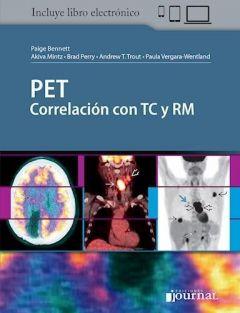 PET CORRELACION CON TC y RM